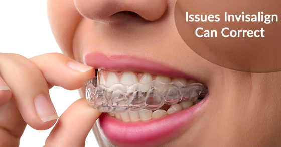 Issues Invisalign Can Correct